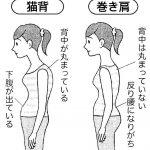 肩凝り、頭痛、不眠は「巻き肩」が原因?